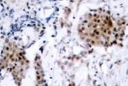 NB100-92531 - Estrogen receptor alpha