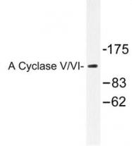 NB100-92437 - Adenylate cyclase type 5