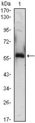 NBP1-47478 - Alpha-1B-glycoprotein / A1BG