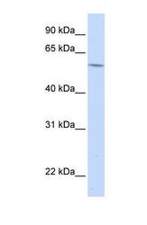 NBP1-57969 - Alpha-1B-glycoprotein / A1BG