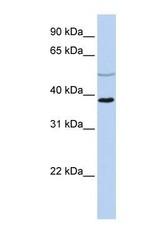 NBP1-54945 - FOX1 / A2BP1