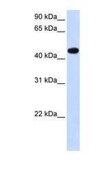 NBP1-62428 - AADAC
