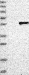 NBP1-85680 - AADAC