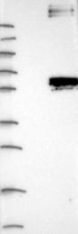 NBP1-90294 - NCEH1 / AADACL1
