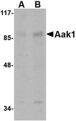 NBP1-76343 - AAK1