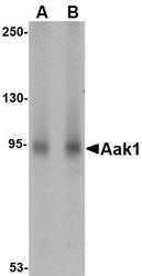 NBP1-77335 - AAK1
