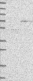 NBP1-81144 - AARSD1