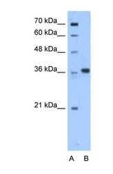 NBP1-54977 - AASDHPPT