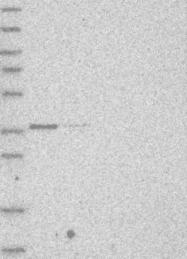 NBP1-89322 - AASDHPPT