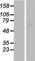 NBL1-07168 - AATF Lysate
