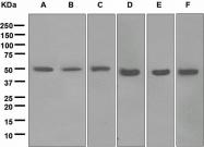 NBP1-95517 - ABAT
