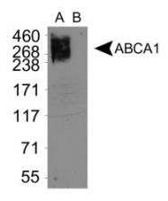 NB400-164 - ABCA1