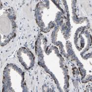 NBP1-83953 - ABCA10