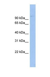 NBP1-57029 - ABCB6