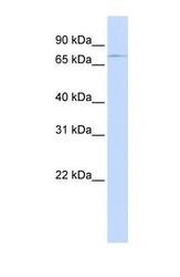 NBP1-59553 - ABCB8 / MABC1