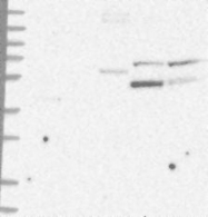 NBP1-84783 - ABCB9
