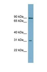 NBP1-59808 - ABCD2 / ALDR