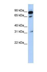 NBP1-59397 - ABCD4 / PXMP1L