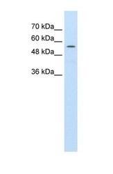 NBP1-59807 - ABCD4 / PXMP1L