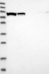 NBP1-89316 - ABCF2