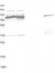 NBP1-89317 - ABCF2