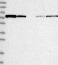NBP1-84781 - ABCF3