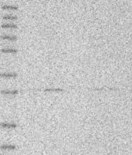 NBP1-83748 - ABHD10