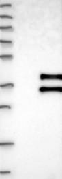 NBP1-87254 - ABHD11