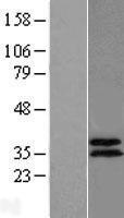 NBL1-07190 - ABHD11 Lysate