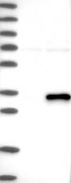 NBP1-88669 - ABHD12B