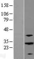NBL1-07191 - ABHD12B Lysate