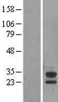 NBL1-07193 - ABHD14A Lysate