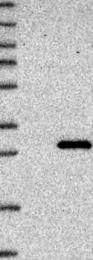 NBP1-84473 - ABHD14B