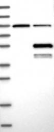 NBP1-82850 - ABHD2 / LABH2