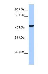 NBP1-55457 - ABHD5