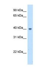 NBP1-55458 - ABHD5