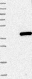 NBP1-86058 - ABHD6
