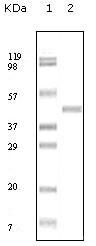 NBP1-47370 - ABL2