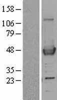 NBL1-07216 - ACAA1 Lysate