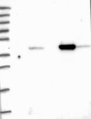 NBP1-84974 - ACAA2