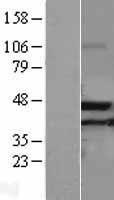 NBL1-07217 - ACAA2 Lysate