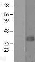NBL1-07218 - ACAD8 Lysate