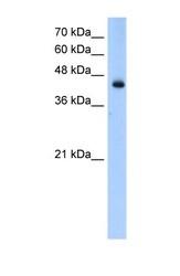 NBP1-54936 - ACADL