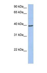 NBP1-54729 - ACADM