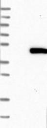 NBP1-89291 - ACADS