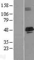 NBL1-07221 - ACADS Lysate