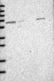 NBP1-89286 - ACADVL