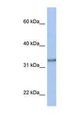NBP1-59830 - ACBD4