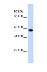 NBP1-59995 - ACBD4