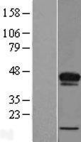 NBL1-07227 - ACBD4 Lysate